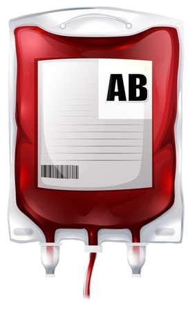 Ilustración de una bolsa de sangre con sangre del tipo AB en un fondo blanco