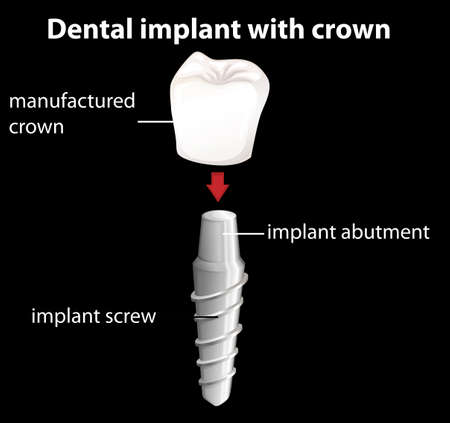 ceramic: Illustration of a dental implant with crown
