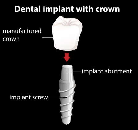 cerámicas: Ilustración de un implante dental con corona