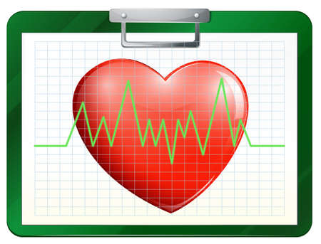 Illustration of a chart with a heart on a white background