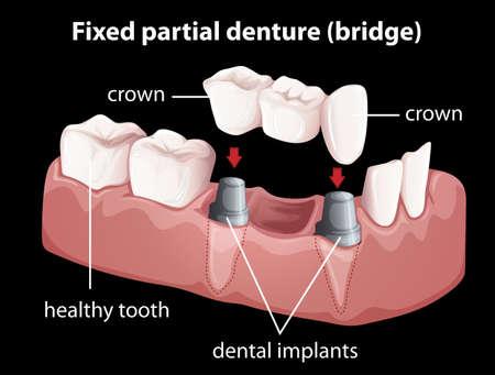retained: Ilustración de una dentadura parcial fija Vectores
