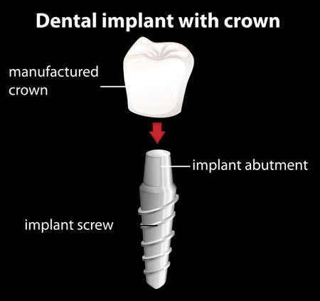 crowns: Illustration of a dental implant with crown