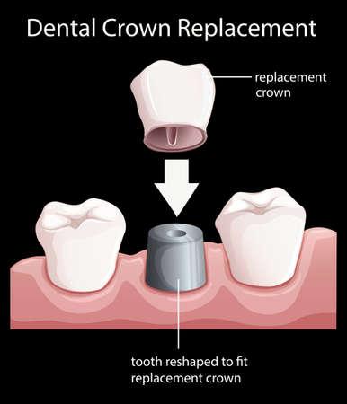 Illustration d'un remplacement de la couronne dentaire