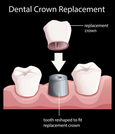 replacements: Illustration of a dental crown replacement