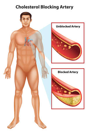 angina: Showing the process of ateriosclerosis Illustration