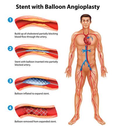 Een stent angioplastieprocedure Stock Illustratie