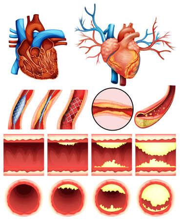 白い背景の上に心臓コレステロールを示すイメージ  イラスト・ベクター素材