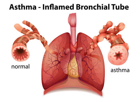 histamine: An image showing the asthma-inflamed bronchial tube on a white background