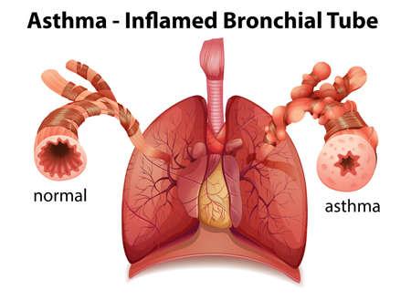 asma: Una imagen que muestra el tubo de asma bronquial inflamado en un fondo blanco Vectores