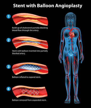 Stent angioplasty procedure on a black background Illustration