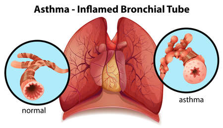 An image of an asthma-inflamed bronchial tube on a white background Illustration