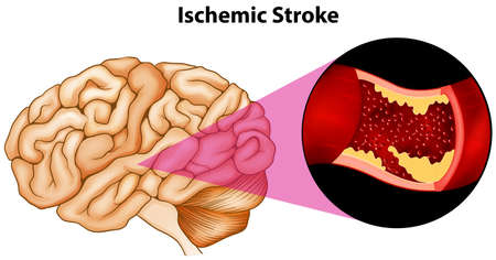 Diagram of ischemic brain stroke