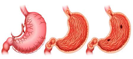 partes del cuerpo humano: La formación de úlceras de estómago en blanco