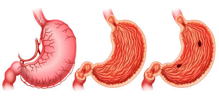 Stomach ulcer formation on white Illustration