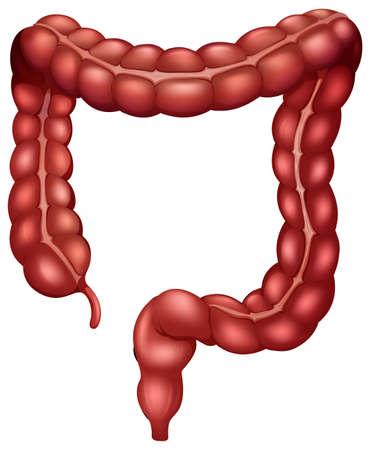 bowel surgery: Large intestion on white background Illustration