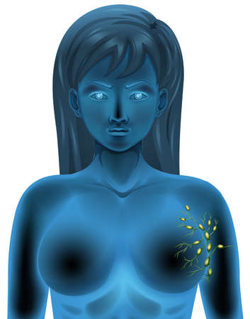 lymph: Female body lymph nodes illustration Illustration