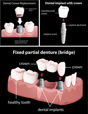 crowns: Dental procedures on black illustration