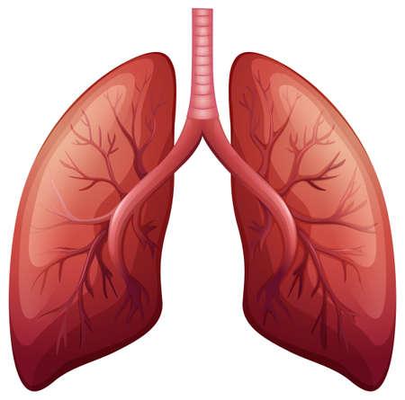 anatomía: Diagrama de cáncer de pulmón en detalle ilustración Vectores
