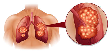 Lung cancer diagram in details illustration Ilustração