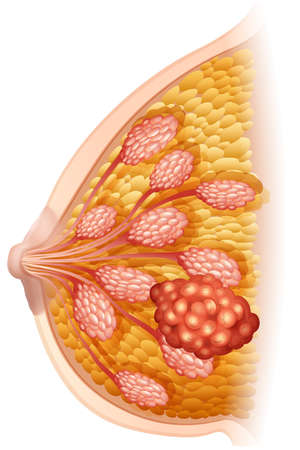 breast: Breast cancer diagram in detail illustration