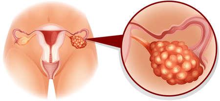 Overian cancer diagram in detail illustration