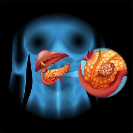 Pancreas cancer diagram in detail illustration Illustration
