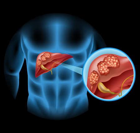 higado humano: Diagrama de cáncer de hígado en detalle ilustración