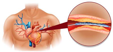 human heart: Diagrama de corazón humano con la ilustración de tubo de globo