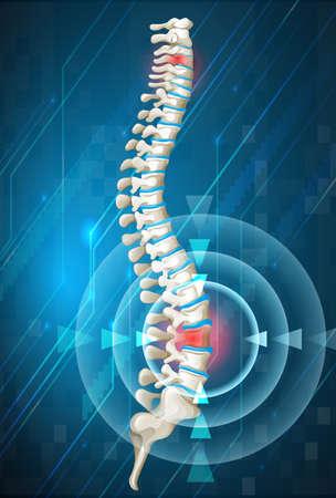 columna vertebral: Columna vertebral humana que muestra la espalda ilustración dolor