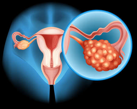 ovarian: Ovarian cancer diagram in detail illustration