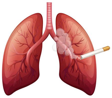 cancer de pulmon: El c�ncer de pulm�n con la ilustraci�n de humo