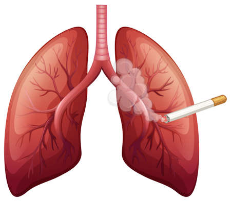 lung cancer: Lung cancer with smoke illustration Illustration