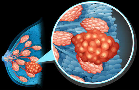 breast: Breast cancer diagram close up illustration Illustration