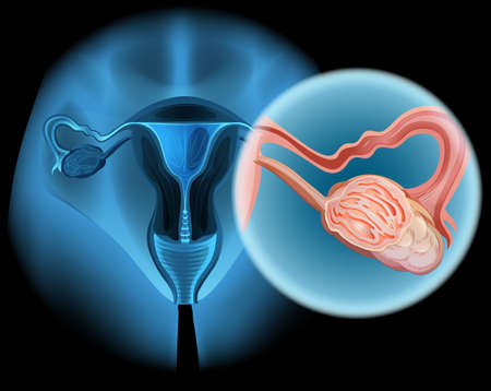 ovarian: Ovarian cancer diagram in woman illustration