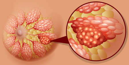 Breast cancer diagram in detail illustration