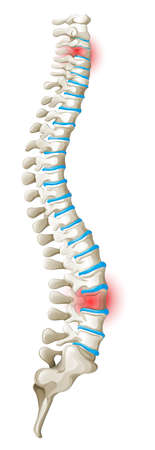 pain: Spine back pain diagram illustration Illustration