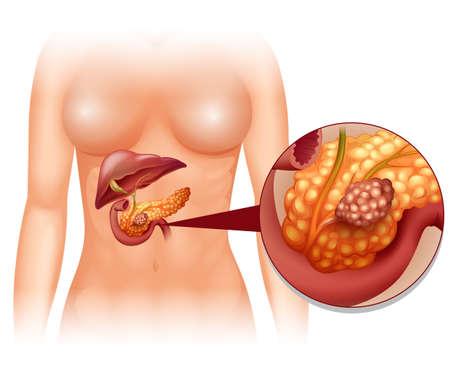 pancreas: Pancreas cancer in woman illustration Illustration