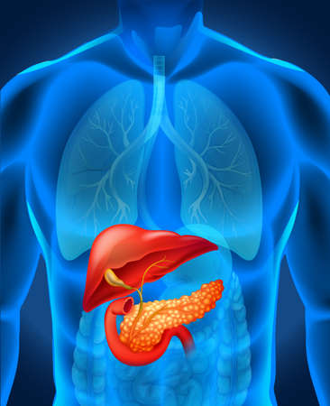 Pancreas cancer in human body illustration