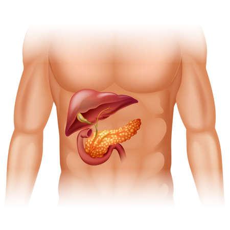hombre: Diagrama de cáncer de páncreas en detalle ilustración Vectores