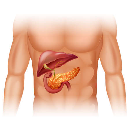 cancer: Pancreas cancer diagram in detail illustration Illustration