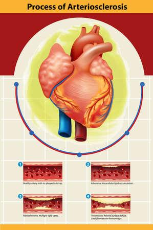 persona enferma: Cartel de la ilustración proceso de arteriosclerosis Vectores