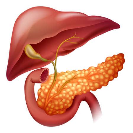higado humano: Diagrama de cáncer de páncreas en detalle ilustración Vectores