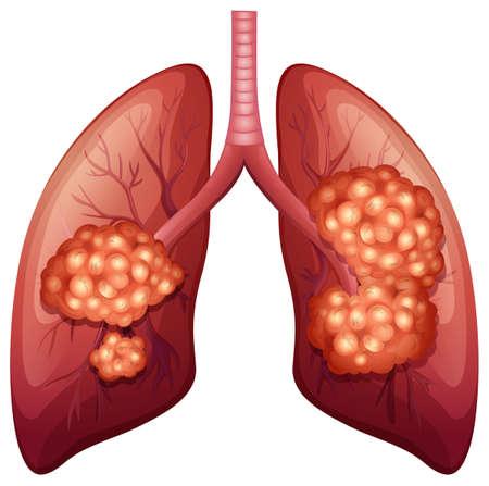 partes del cuerpo humano: Proceso de cáncer de pulmón en detalle ilustración Vectores