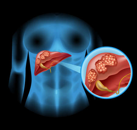 close up woman: Liver Cancer diagram in detail illustration Illustration