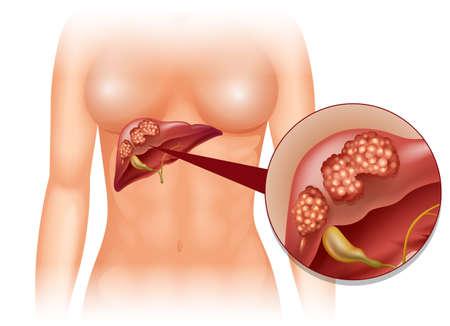 human liver: Liver cancer diagram in detail illustration