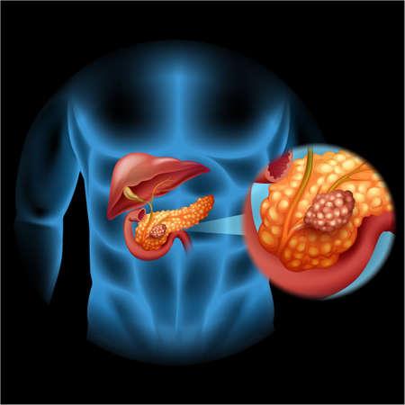medical man: Pancreas cancer diagram in human body illustration