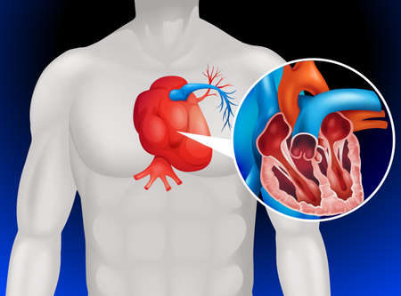 cartoon sick: Heart disease diagram in detail illustration