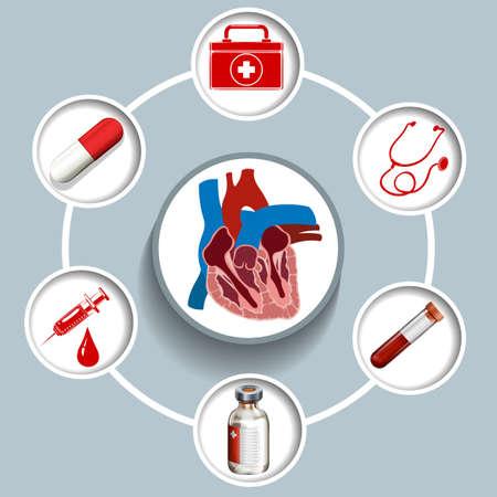 ataque al corazón: Infografía con los equipos médicos ilustración