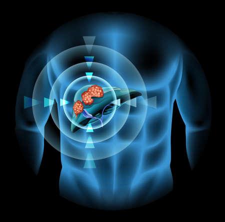 higado humano: El c�ncer de h�gado diagrama que muestra los detalles de la ilustraci�n
