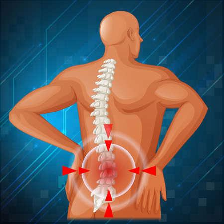 espina dorsal: Diagrama de la columna vertebral que muestra detrás ilustración dolor
